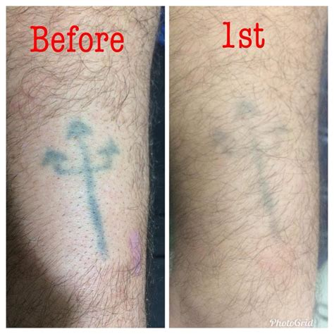 tattoo removal manila tattclear manila removal clinic home