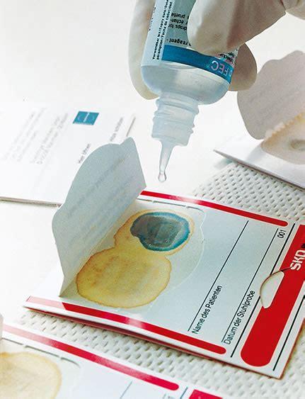 säugling blut im stuhl dickdarmkrebs kolonkarzinom fr 252 herkennung symptome