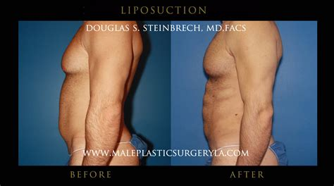 lipo section male liposuction in los angeles