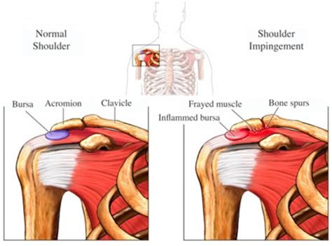 bench press neck injury beantown physio pt tip of the month archive impingement syndrome
