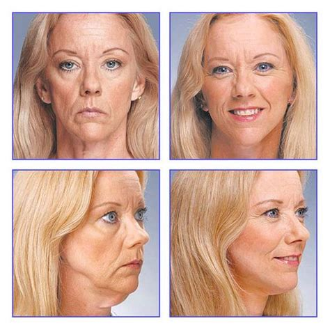 Next Facelift For Your Teeth 2 by Lifestyle Lift Before And After If You Are Considering A