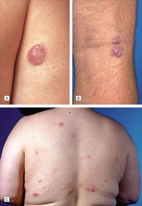 B Skin primary cutaneous marginal zone b cell lymphoma