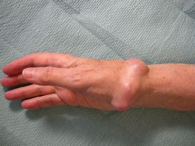 schmerzen handgelenk innen tumor und tumor 228 hnliche ver 228 nderungen roland klinik