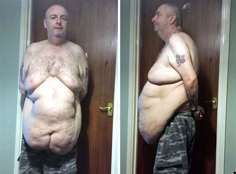 old man sagging buns obese man sheds 12st but can t bear to live with loose