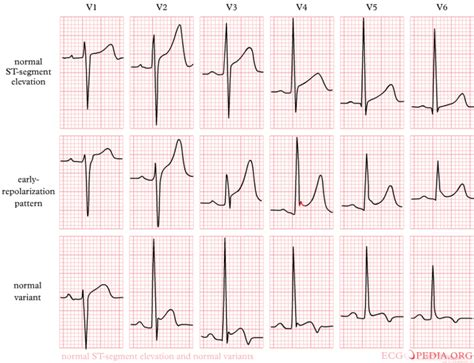ecg pattern meaning st interval wikidoc