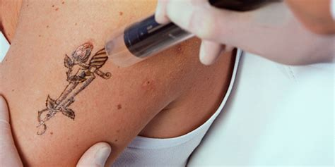 tattoo removal breastfeeding everything you need to about laser removal