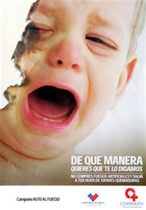 Imagenes De Niños Quemados Por Fuegos Artificiales | ni 241 os quemados