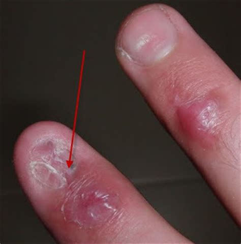 nail bed injury appartment near me nail bed injury sutured for a living