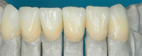 dental design lab glasgow services