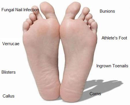 Common Foot Problems by How To Prevent Common Foot Problems