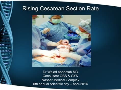 c section rate by doctor cs in naser medical complx gaza palestine