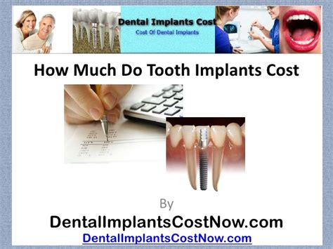 how much do cost how much do tooth implants cost