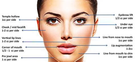 Where Your Wrinkle Filler Gets Injected Podcast by Dermal Fillers In Adelaide Medicine Of Cosmetics