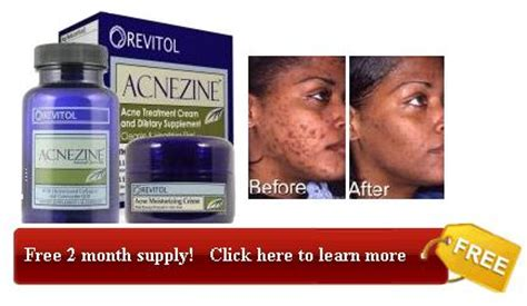 Accutane Liver Detox by What Are The Side Effects Of Accutane
