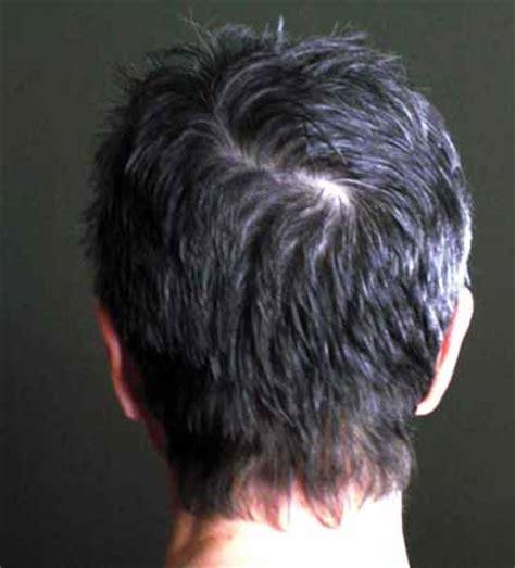 double crown hair wikopedia thumbnail