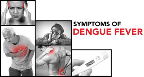 fever symptoms dengue fever pictures posters news and on your pursuit hobbies interests