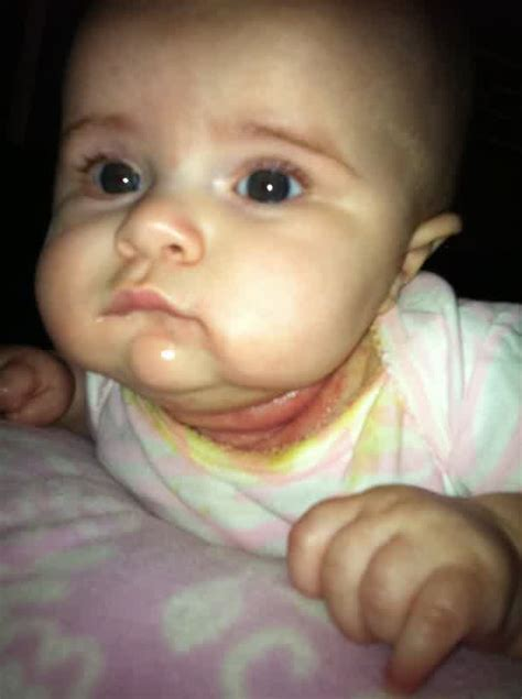 baby neck candida diet ketchup recipe candida infection baby neck
