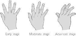 arthritis definition of arthritis by the free dictionary rheumatoid arthritis definition of rheumatoid arthritis