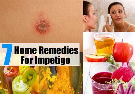 best treatment for impetigo remedies for impetigo