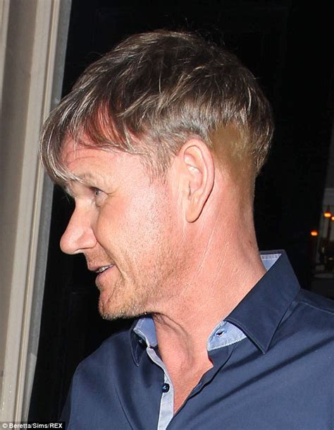 going going gone outing bald celebrities jimmy kimmel gordon ramsay sparks new hair transplant rumours with