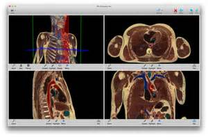toltech vh dissector 5