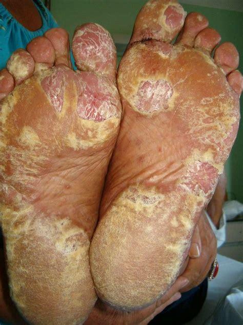 psoriasi interna malattie della pelle colpiscono viso piedi e