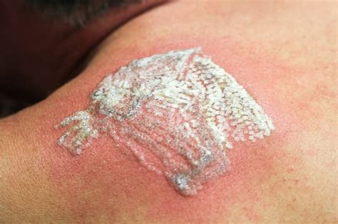 white tattoo process the truth about laser tattoo removal side effects andrea
