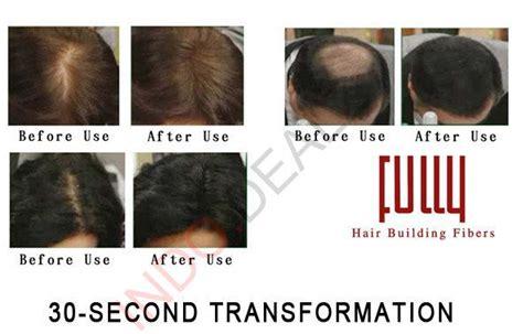 Kaminomoto Hair Growth Accelerator Malaysia buy turun harga fully original hair building fiber