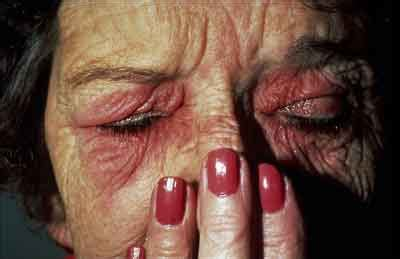 infection home remedies livestrongcom personal