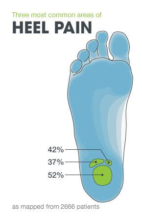 Detox Foot Pads Plantar Fasciitis by Severe Heel And What You Should Kuru