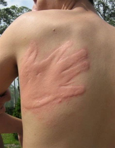 scratch marks on back