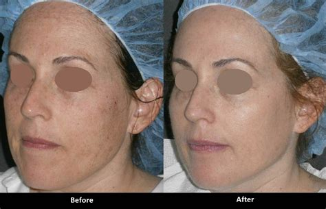 e one ipl session before and after on man and woman face forever young bbl ipl photofacial a e skin med spa