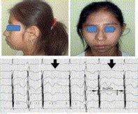 aborted sudden cardiac death abnormal electroencephalogram epileptic seizures
