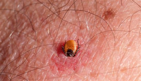 tick in skin tick embedded in skin identifyus
