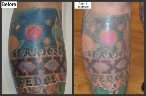 tattoo care during peeling before and after photos millefiori