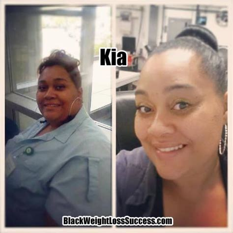 Kia Weight Loss Weight Loss Story Of The Day Kia Lost 103 Pounds Black