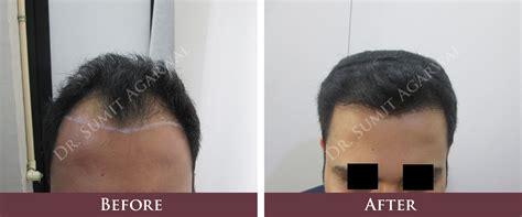 dhi hair transplant reviews hair transplantation in mumbai reviews before and after