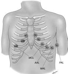 pediatric lead placement diagram 12 lead ekg placement