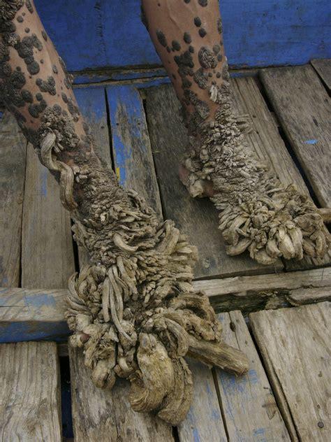 indonesias  human physical deformities  closer