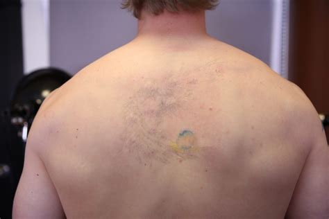 back tattoo removal laser removal before and after the untattoo