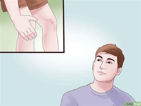 necrosi testa femore sintomi come trattare la necrosi avascolare 14 passaggi