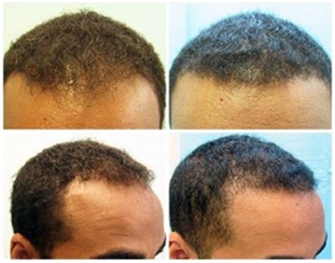 hairline restoration for black men african american fue hair transplant