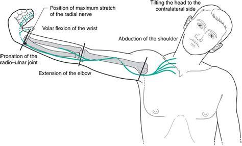 Erfreut Flexion Definition Anatomie Ideen Menschliche | Www ...