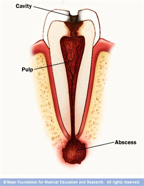 Can You Go To Emergency Room For Tooth by Symptoms And Causes Tooth Abscess Mayo Clinic