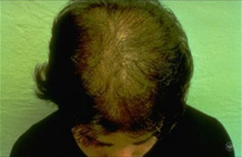 Types Of Hair Loss Diseases by Hair Loss American Academy Of Dermatology