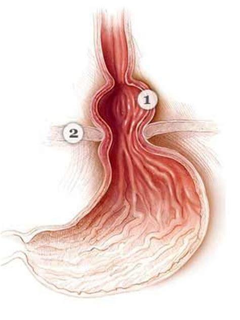 types  hernia everyday health