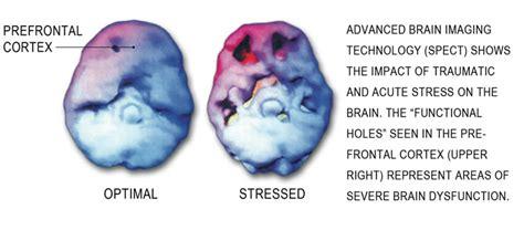 Brain Stress - brain stress images search