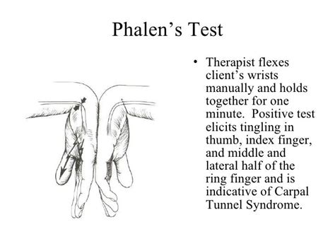 phalens test therapist flexes clients wrists manually