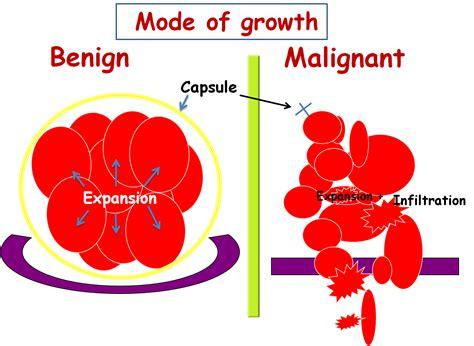 benign tumor on image gallery malignant tumor