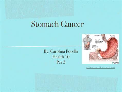 Terbaik Gastric Health 3 health 10 ppt 1 stomach cancer